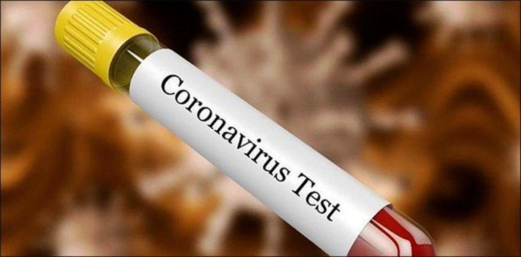 नेपालमा कोरोना संक्रमितको संख्या ३ हजार ७ सय ६२ पुग्यो